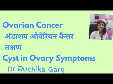 Ovarian cancer ke lakshan, Metastatic cancer ke lakshan - eng2ro.ro