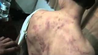 Дамаск Город Domaa..Пытки детей в Сирии правящим режимом