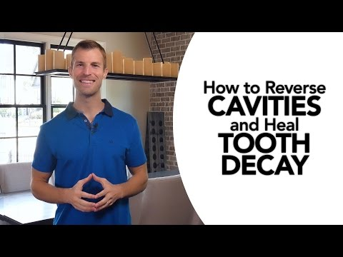 How to Treat Cavities Naturally and Reverse Tooth Decay