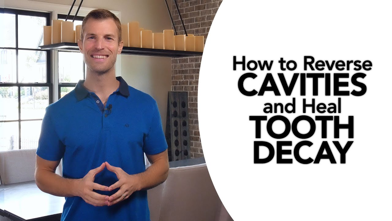 895366ca94 How to Treat Cavities and Reverse Tooth Decay Naturally - YouTube