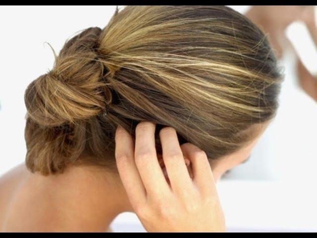 на макушке головы болят корни волос