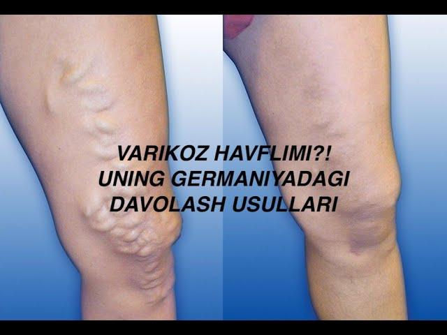 Fájdalmas lábak a varikózis miatt mit kell tennie