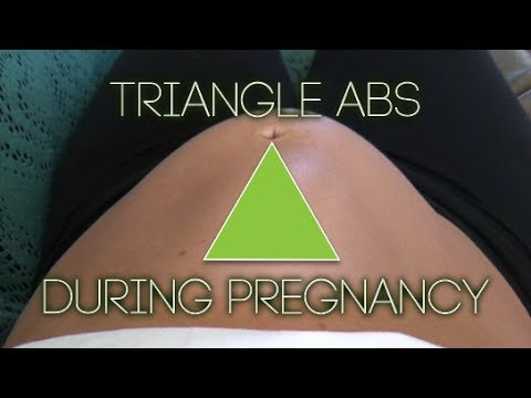 ABDOMINAL SEPARATION IN PREGNANCY - Diastasis Recti - Ab Splitting