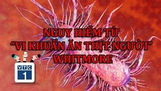 """Hà Nội: 3 trẻ tử vong do """"vi khuẩn ăn thịt người"""""""
