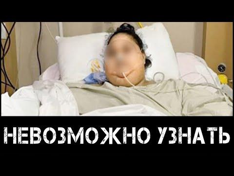 Облысела, располнела, опухла: рак мозга изуродовал Заворотнюк
