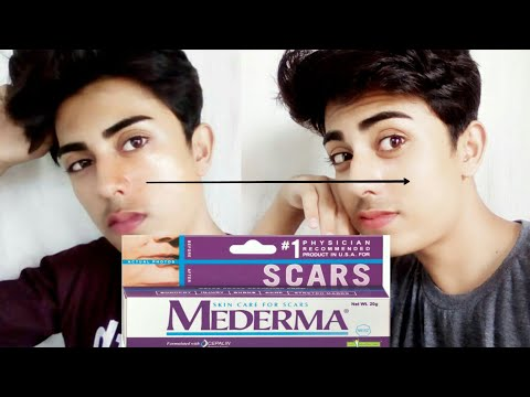 mederma gel for scars / acne scars pimple marks - best scars Removal Cream