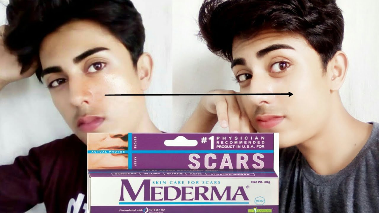 Mederma Gel For Scars Acne Scars Pimple Marks Best Scars