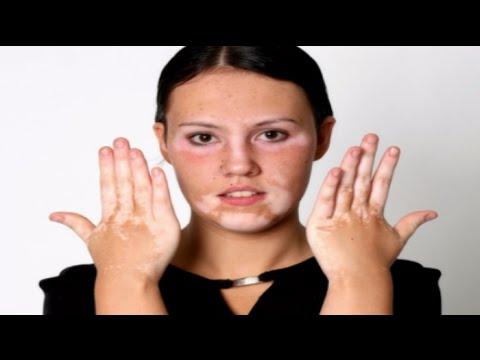 Skin Pigment Loss Vitiligo Youtube