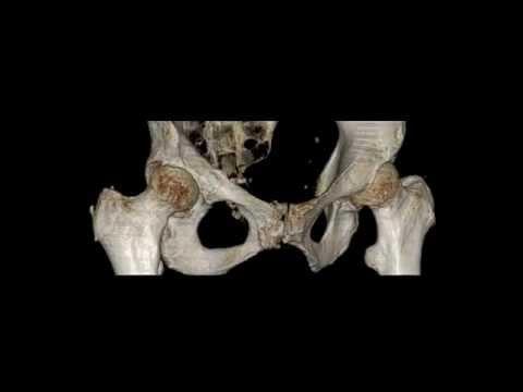 irad-ka Schambeinbruch pelvic bone fracture os pubis Schambein Ihre Radiologie in Karlsruhe