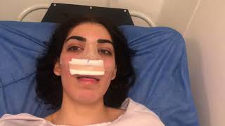 Video ME OPERÉ LAS BOOBIES Y LA RECHACE  & RINOPLASTIA- VOLVI A YOUTUBE?-RENATA ALTAMIRANO♡ download MP3, 3GP, MP4, WEBM, AVI, FLV Oktober 2018