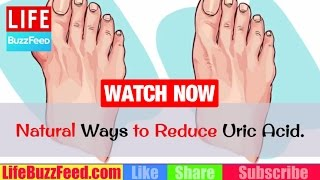 7 Natural Ways to Reduce Uric Acid. How to Reduce Uric Acid? Foods to Avoid with Gout, Hyperuricemia