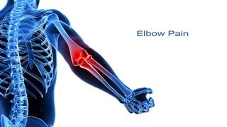 Video 5 Steps to Elbow Pain Relief download MP3, 3GP, MP4, WEBM, AVI, FLV Desember 2017