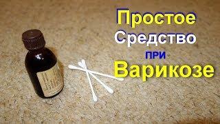 видео Варикоз