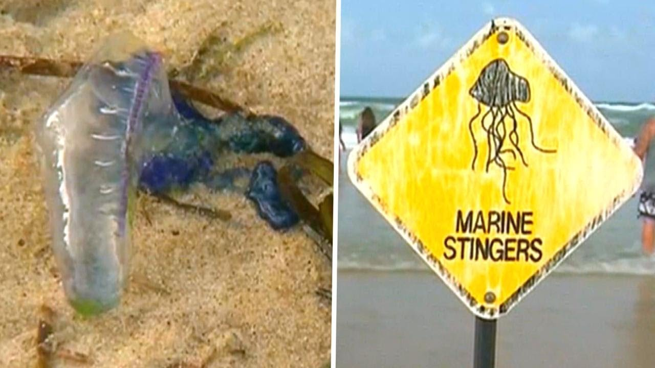 beaches-shut-down-after-3-500-people-get-stung-by-jellyfish