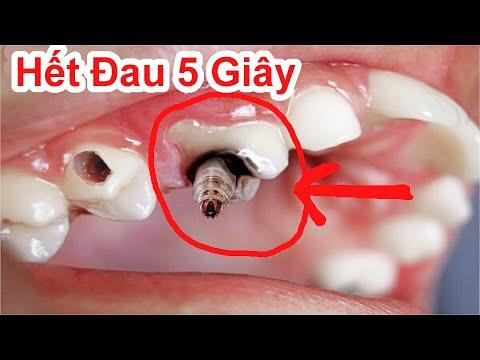 Đã Tìm Ra Cách Làm Hết Đau Răng Cấp Tốc Cực Nhanh / Mẹo Làm Hết Đau Răng Nhanh Nhất . Toothache