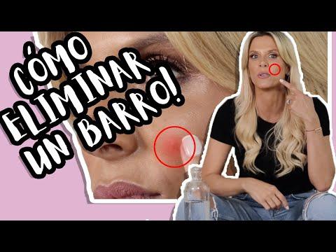 Cómo Eliminar Barros En Minutos - Bueno Bonito Y Barato - Cata Maya