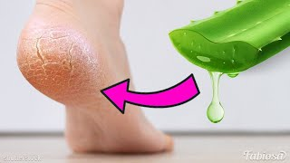 9 simple and effective ways to use aloe vera in your beauty routine