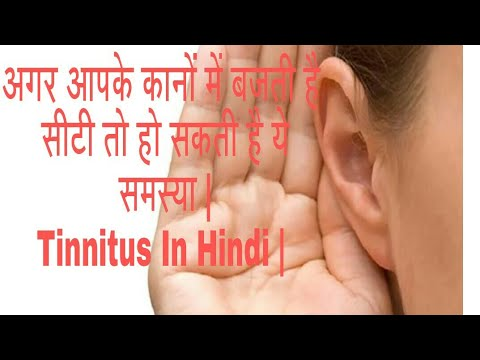 #ringing in ears # tinnitus Treatment in hindi - Causes and treatment