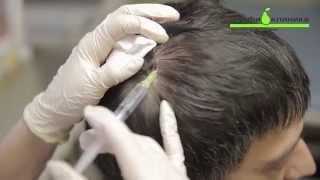 Трихология, лечение волос в