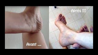 Oedèmes aux chevilles, jambes gonflées et lourdes, comment s'en débarrasser ?