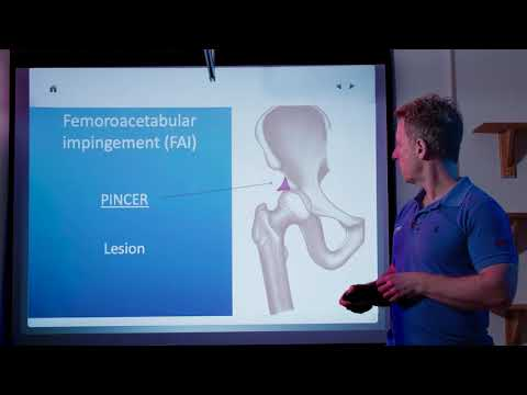 Hip Joint Pathologies causing back, groin, buttock, & knee pain