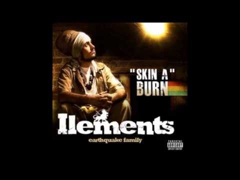 Ilements - Skin a burn