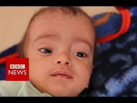 Yemen hospital battles world's worst cholera outbreak - BBC