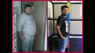 How I lost 77 kg| Best Weight loss story after Bariatric surgery| Best Bariatric surgeon in India|