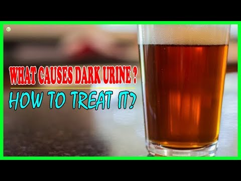 What Causes Dark Urine And How To Treat It? | Best Home Remedies