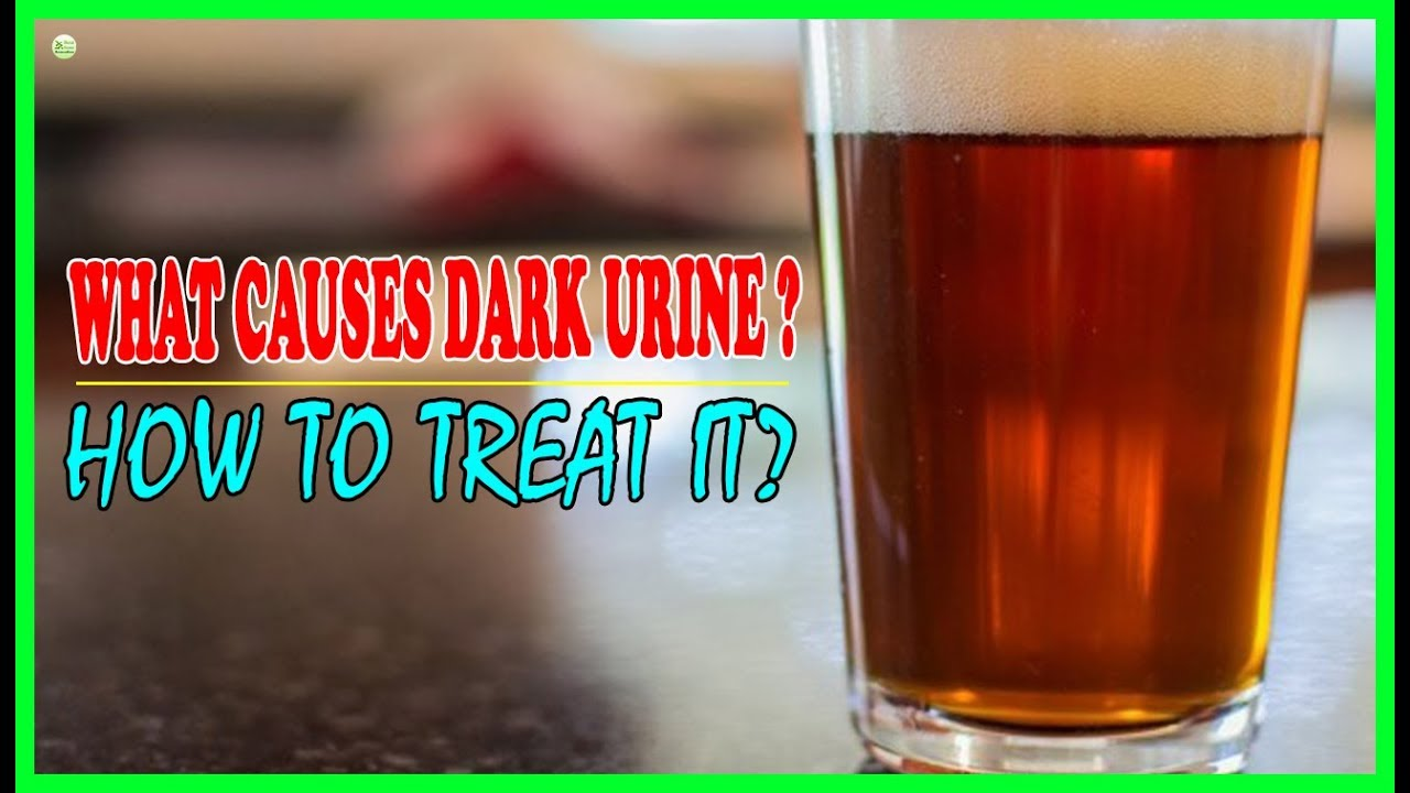 what causes dark urine and how to treat it best home