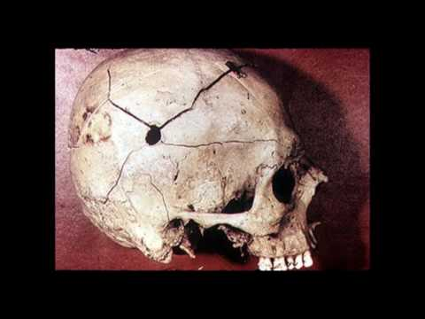 Trepanation in the Ancient Andes