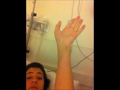 Complex Regional Pain Syndrome/ Reflex Sympathetic Dystrophy Awareness: Caroline