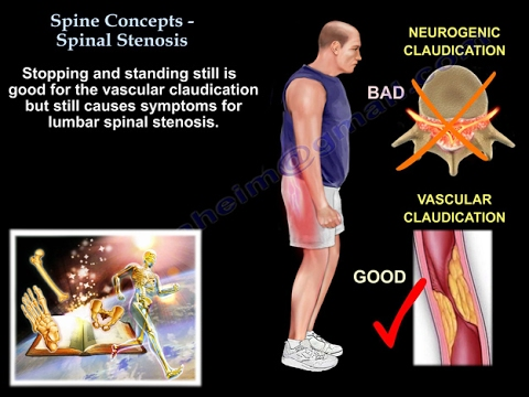 Spine Concepts , Lumbar Spinal Stenosis - Everything You Need To Know - Dr. Nabil Ebraheim