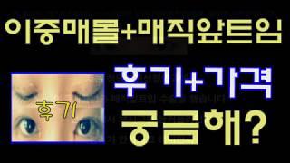 청담코지 [ 이중매몰+매직앞트임 ] 후기 + 비용 보러…