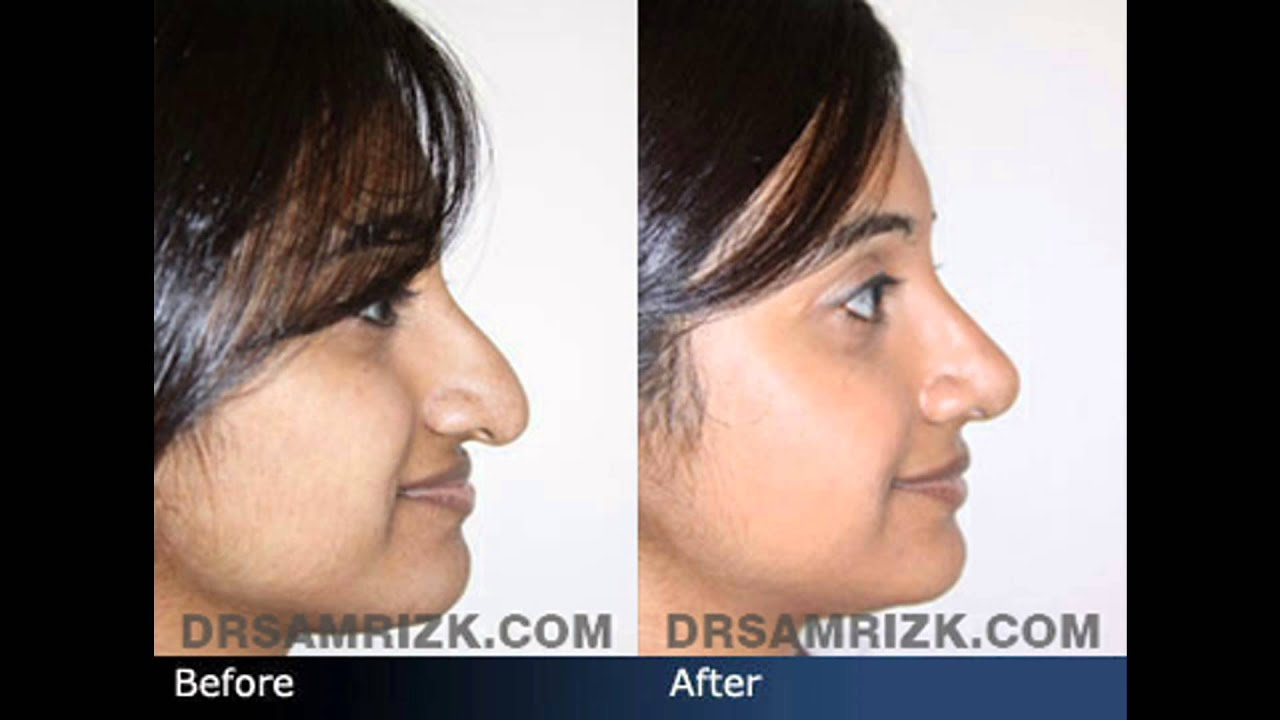 Rhinoplasty Before And After NYC Before  amp After Facial
