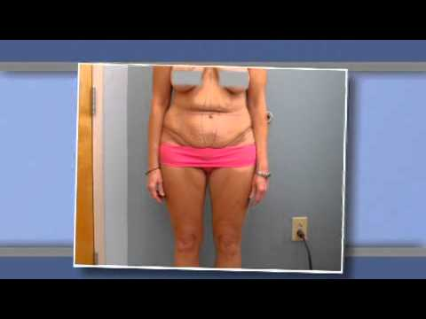 Body Contouring - Tummy Tuck | South Carolina