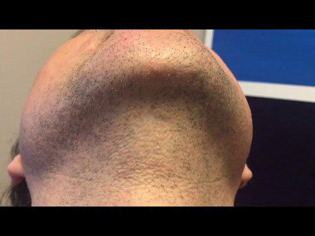 Dallas Chin Implant Close Up Scar Analysis