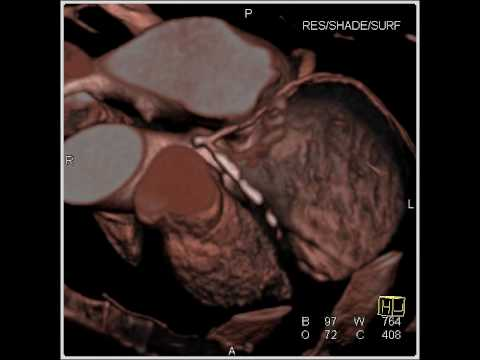 Cardiac: extensive calcifications in the LAD (1 of 4)