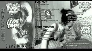 Anus Tumor - Split Tape with PENE 2/2
