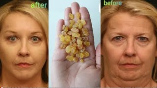More powerful than Botox, it eliminates wrinkles around the eyes and forehead