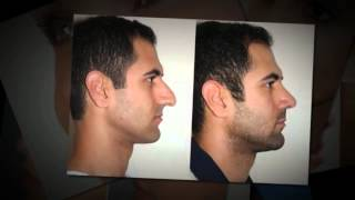 (855) 622-4466 Rhinoplasty Surgery Cost San Antonio TX | How Much Does Nose Job Surgery Cost Texas