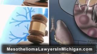 Michigan Mesothelioma Lawyer | Michigan Asbestos Mesothelioma Attorney, MI