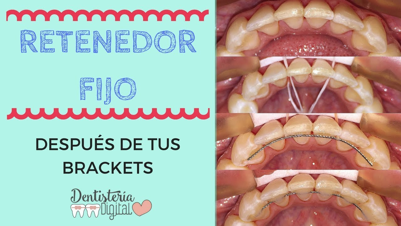 Guardas despues de los brackets