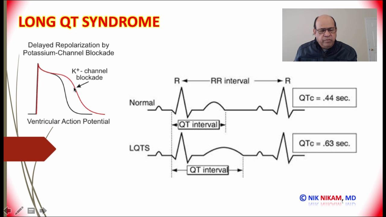 Long Qt Syndrom Forum