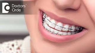 Is extraction of teeth necessary before going for Orthodontic Treatment ? - Dr. Nandini Nelivigi