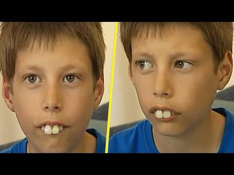 В школе смеялись над его кроличьими зубами. Но через 5 лет он всех удивил!