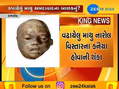 Head of child that found from Rajkot was a boy of Ahmedabad ! | Zee24Kalak