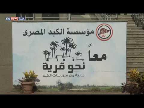 مصر تحقق نجاحا كبيرا بعلاج فيروس سي  - نشر قبل 4 ساعة