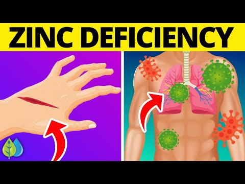 Top 15 Signs of Zinc Deficiency You Need To Know