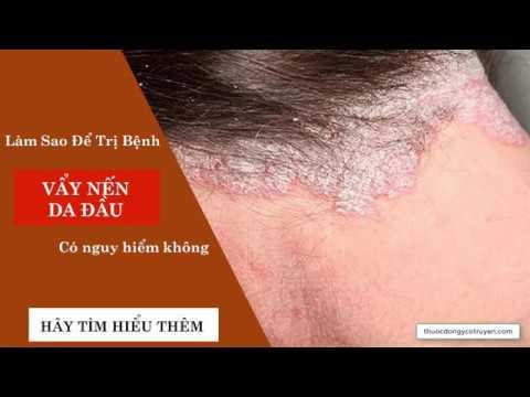 Bệnh vẩy nến da đầu có lây không? Cách điều trị hiệu quả sau 10 ngày